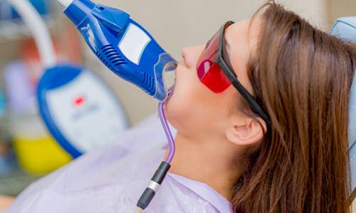 Teeth Whitening at Dentist Office