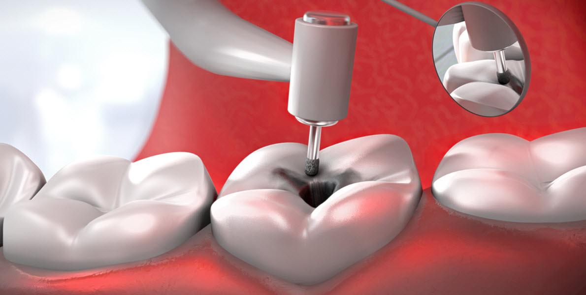Dental Filling Procedure