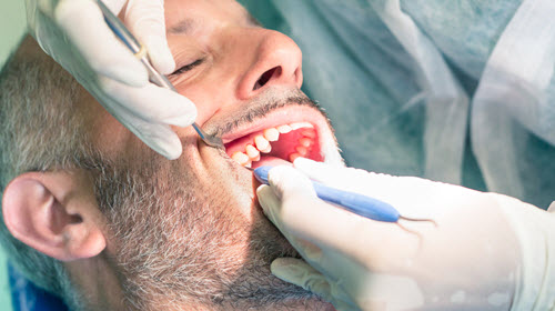 Dentist Checking Tooth Plaque Buildup